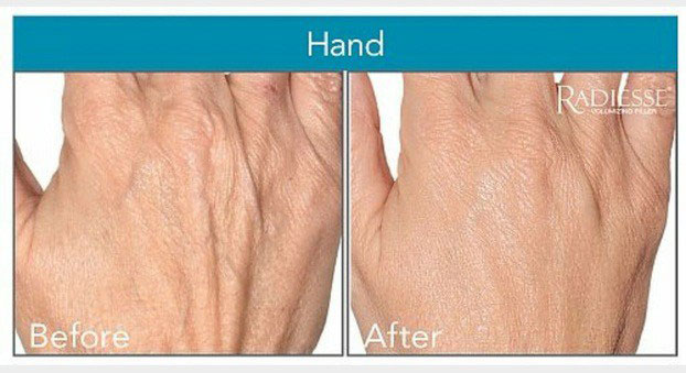 treatment from hand crawley botox