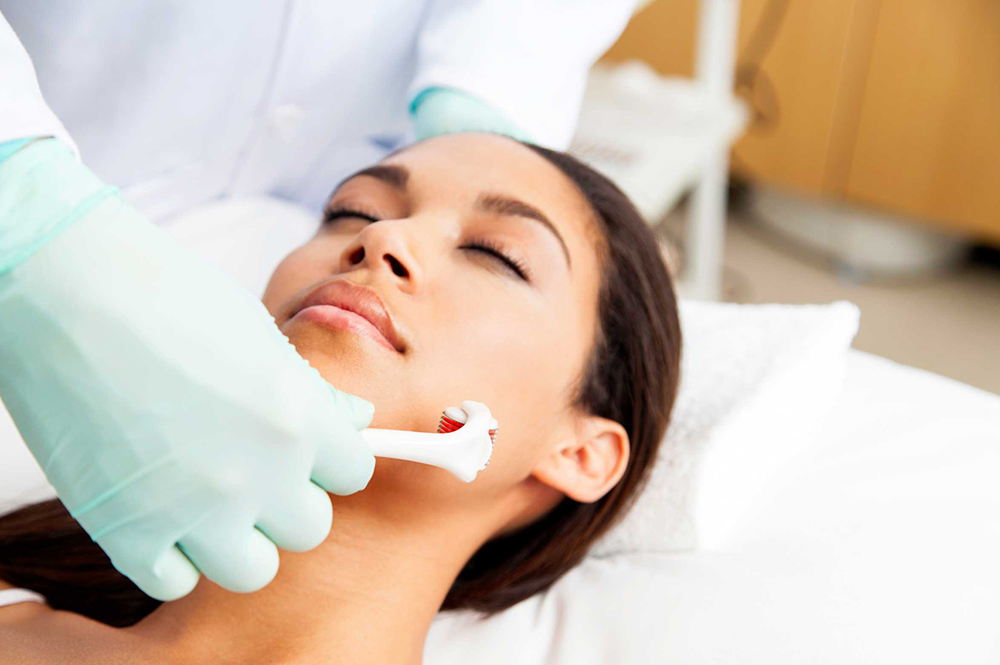 microneedling treatment salon clinic