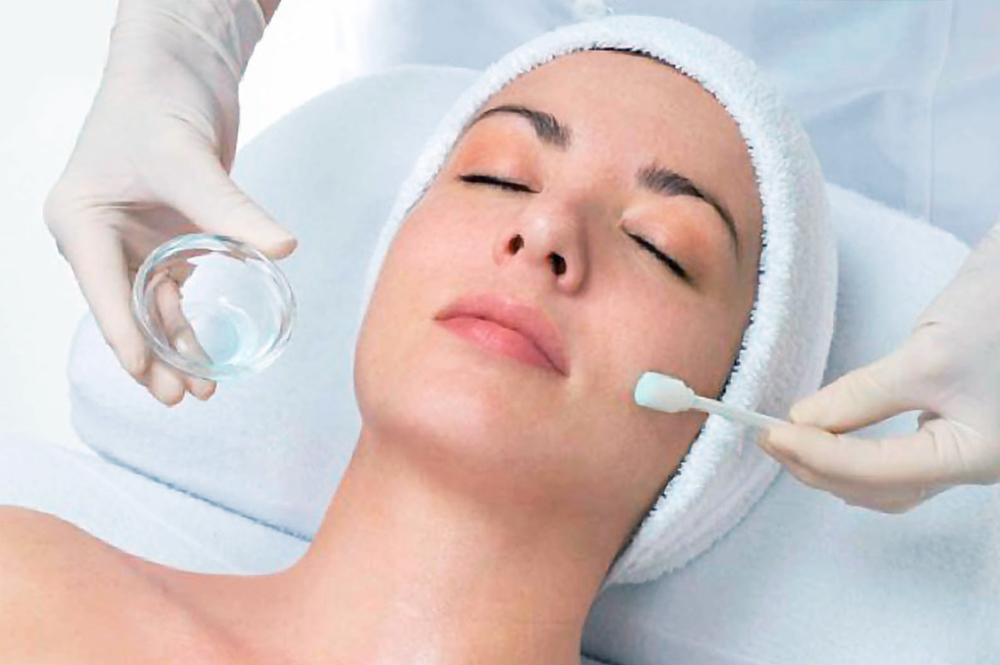 skin-peels treatment