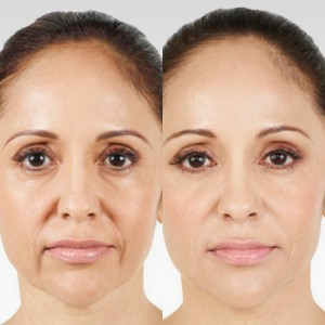 Juvederm crawley clinic